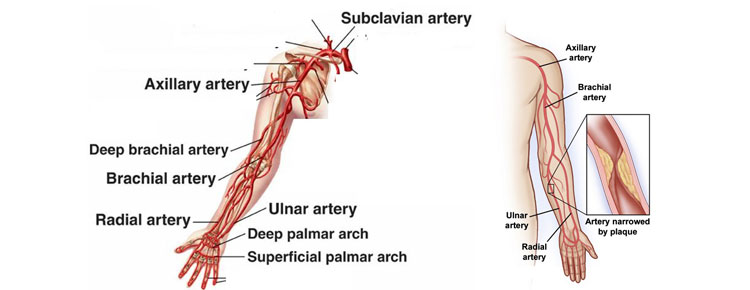 Arm Artery Disease