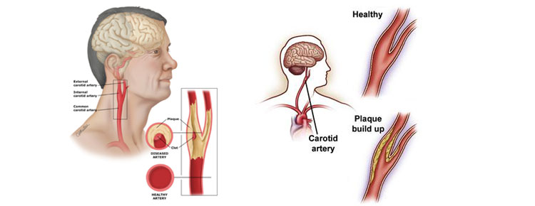 Carotid Artery Disease Treatment In Chennai