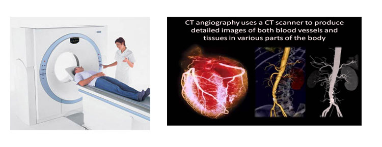 Computed Tomography Angiography