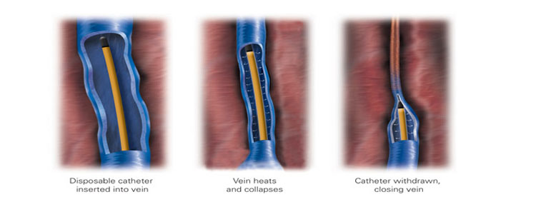 Venefit™ Targeted Endovenous Therapy